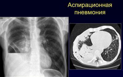 Аспирационная пневмония на рентгене