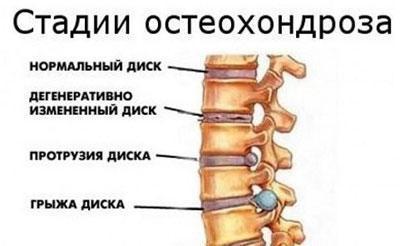 Стадия остеохондроза