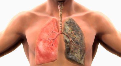 Вылечиться от туберкулёза