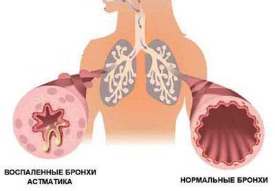Состояние бронхов при астме