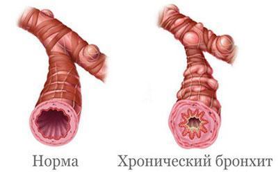 Бронхи при воспалении