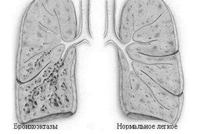 Бронхоэктаническая болезнь