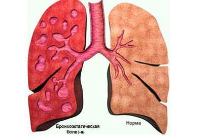 Проявление бронхоэктатической болезни