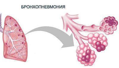 Проявление бронхопневмонии