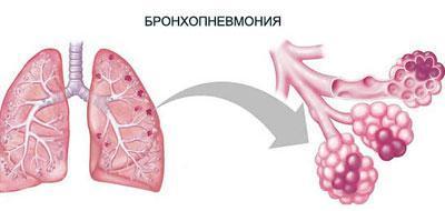 Следствие бронхопневмонии