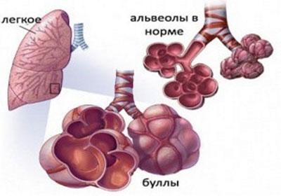 Буллёзная болезнь