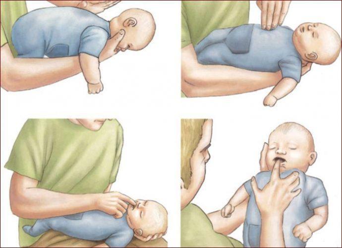 Помощь ребенку при инородном теле