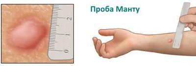 Определение размера манту