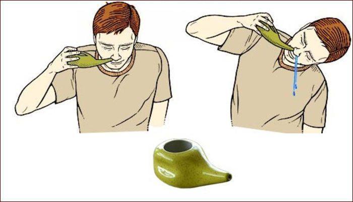 Промывание носа при помощи чайничка