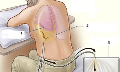 Пункция при гидротораксе