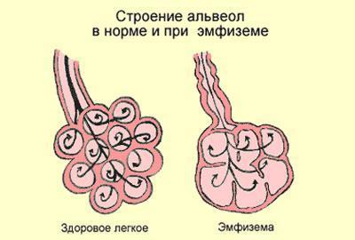 Проявление эмфиземы