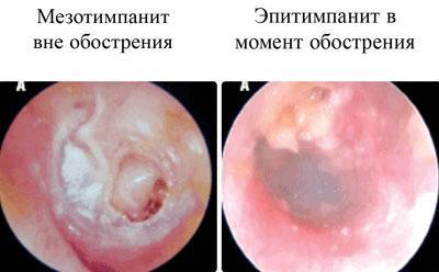 Эпитимпанит и мезотимпанит
