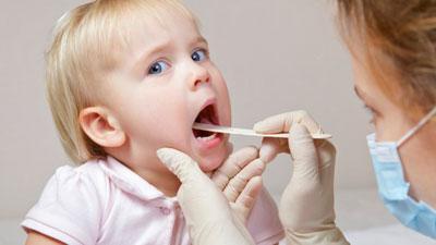 Как правильно и эффективно лечить ангину у ребенка в 2 года?