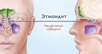 Проявление этмоидита