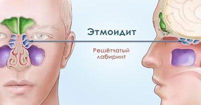 Симптомы этмоидита