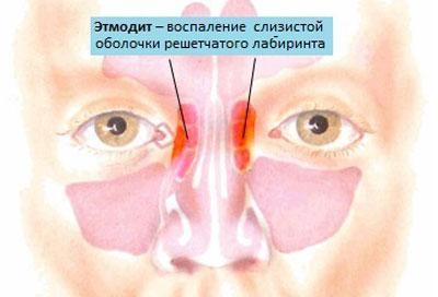 Воспаление при этмоидите