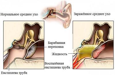 Проявление евстахиита