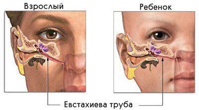 Евстахиевая труба у ребенка и взрослого