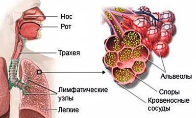 Бронхопульмональный аспергиллез