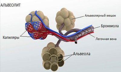 Проявление альвеолита