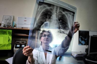 Диагностика состояния легких