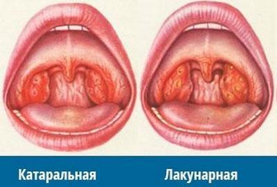 Лакунарная и катаральная ангина