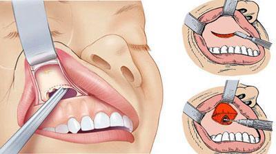 Киста пазухи верхней челюсти: причины, симптомы