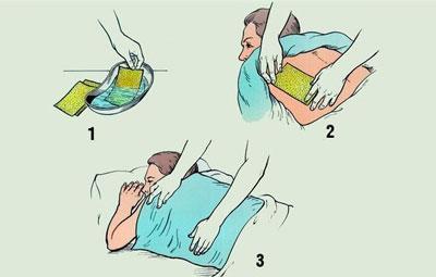 Правила постановки горчичников