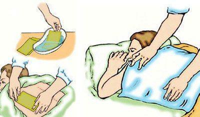 Правила лечения горчичниками