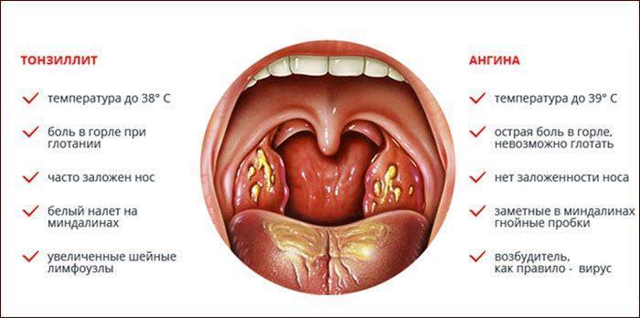 Симптомы ангины и тонзиллита