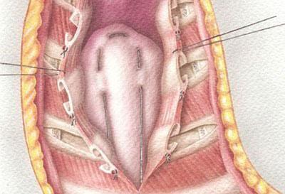 Операция торакопластика