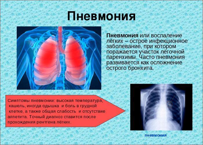 Симптомы острой пневмонии