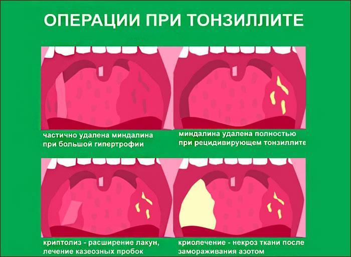 Операции при тонзиллите