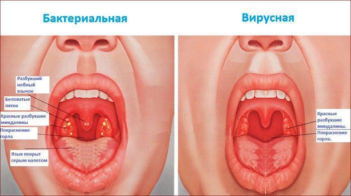 Отличия вирусной и бактериальной ангины