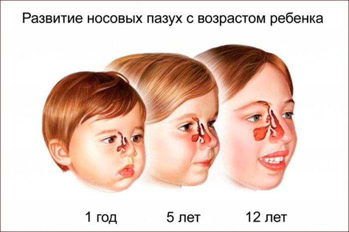 Развитие гайморовых пазух с возрастом ребёнка