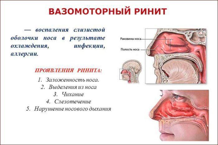 Проявления и симптомы вирусного ринита