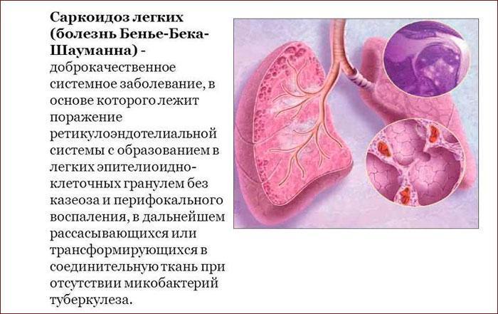 Что такое саркоидоз легких
