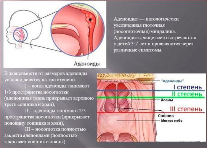 Аденоидит, степени разрастания аденоидов