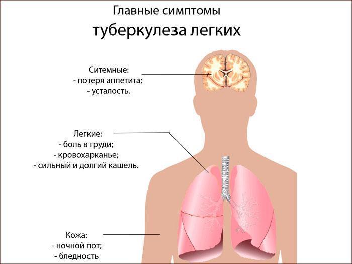 симптомы туберкулёза