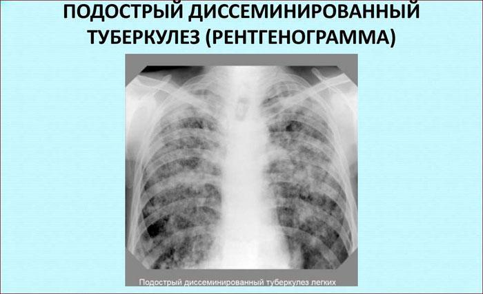 Диссеминированныйтуберкулёз лёгких