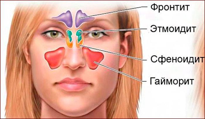 очаги поражения отитом, гайморитом, этмоидитом, сфеноидитом