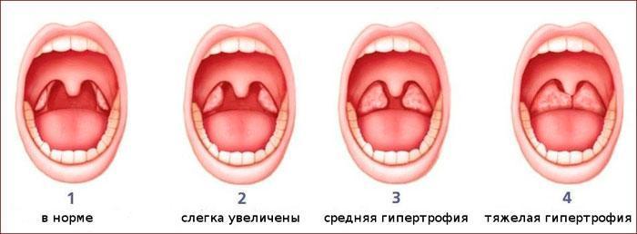 Стадии гипертрофии миндалин