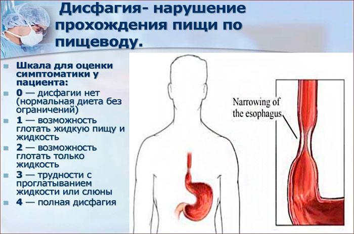 симптомы и степени дисфагии