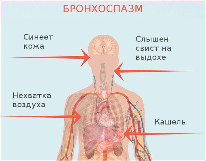 симптомы при бронзоспазме