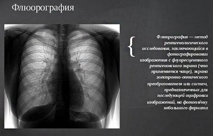 что такое флюорография