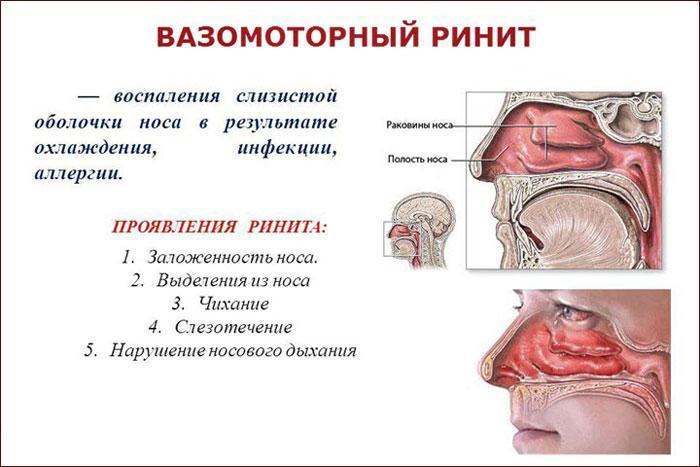 симптоматика ринита