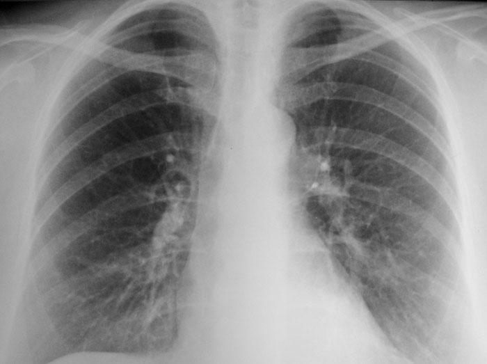 кальцинаты на рентгенологическом снимке