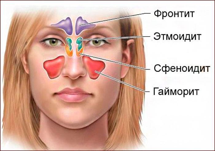 Расположение синуситов