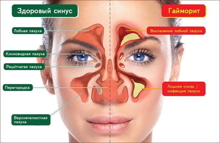 симптомы при гайморите