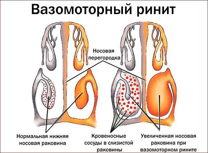 специфика вазомоторного ринита